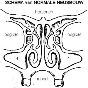 Neusbijholtenoperatie / FESS - normaal