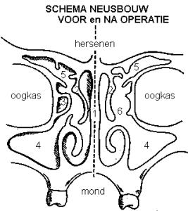 Neusbijholtenoperatie / FESS - pre- en postOK