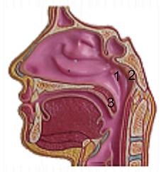 Neusamandel / adenoid - schema - Trommelvliesbuisjes