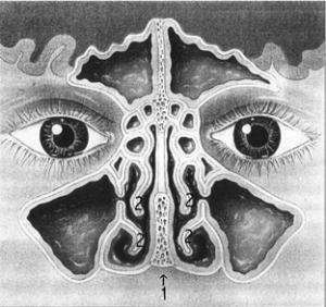 Uitwendige neuscorrectie - open rhinoplastiek