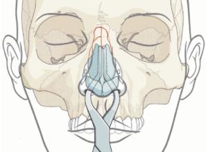neusbreuk - neusfractuur | kno.amsterdam | 020-6 346 212 | BovenIJ Ziekenhuis